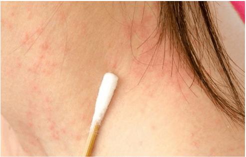 Tratamiento psoriasis medicina natural